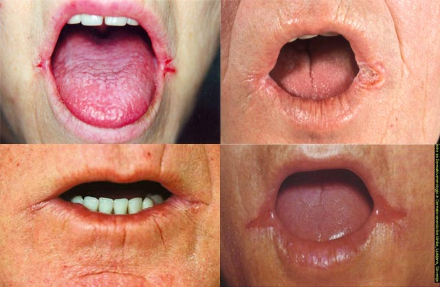 Pictures of older people with angular cheilitis