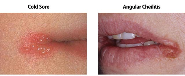 Cold Sore vs Angular Cheilitis